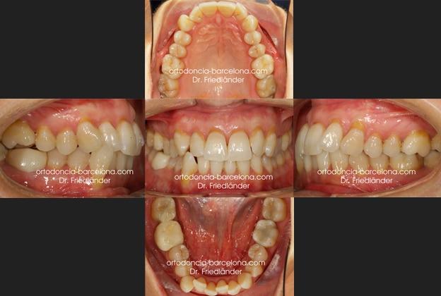 Ortodoncia Friedländer Barcelona Invisalign lingual invisible transparente estetica gracia (4)
