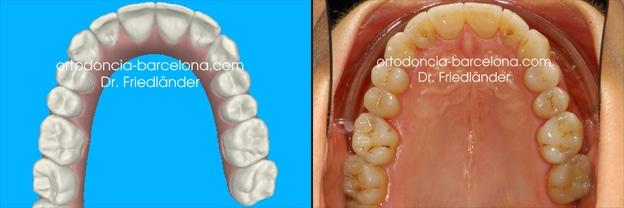 Ortodoncia Friedlander Barcelona clincheck Invisalign invisble lingual incognito transparente (1)