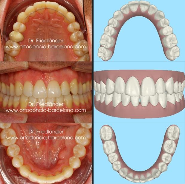 Ortodoncia Barcelona Friedlander Invisalign lingual invisible transparente estetica incognito (