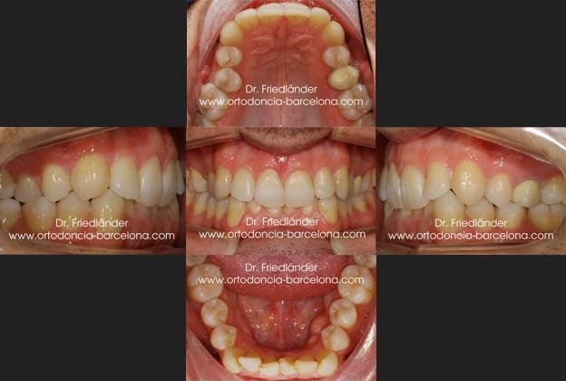 Ortodoncia Barcelona Friedlander Invisalign lingual invisible transparente estetica incognito (4)