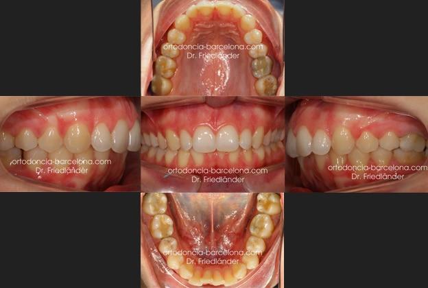 ortodoncia friedländer Barcelona Invisalign incognito lingual invisible estetica transparente (1)