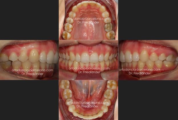 ortodoncia friedländer Barcelona Invisalign incognito lingual invisible estetica transparente (2)