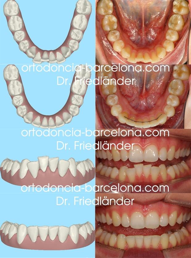 ortodoncia friedländer Barcelona Invisalign incognito lingual invisible estetica transparente (3)