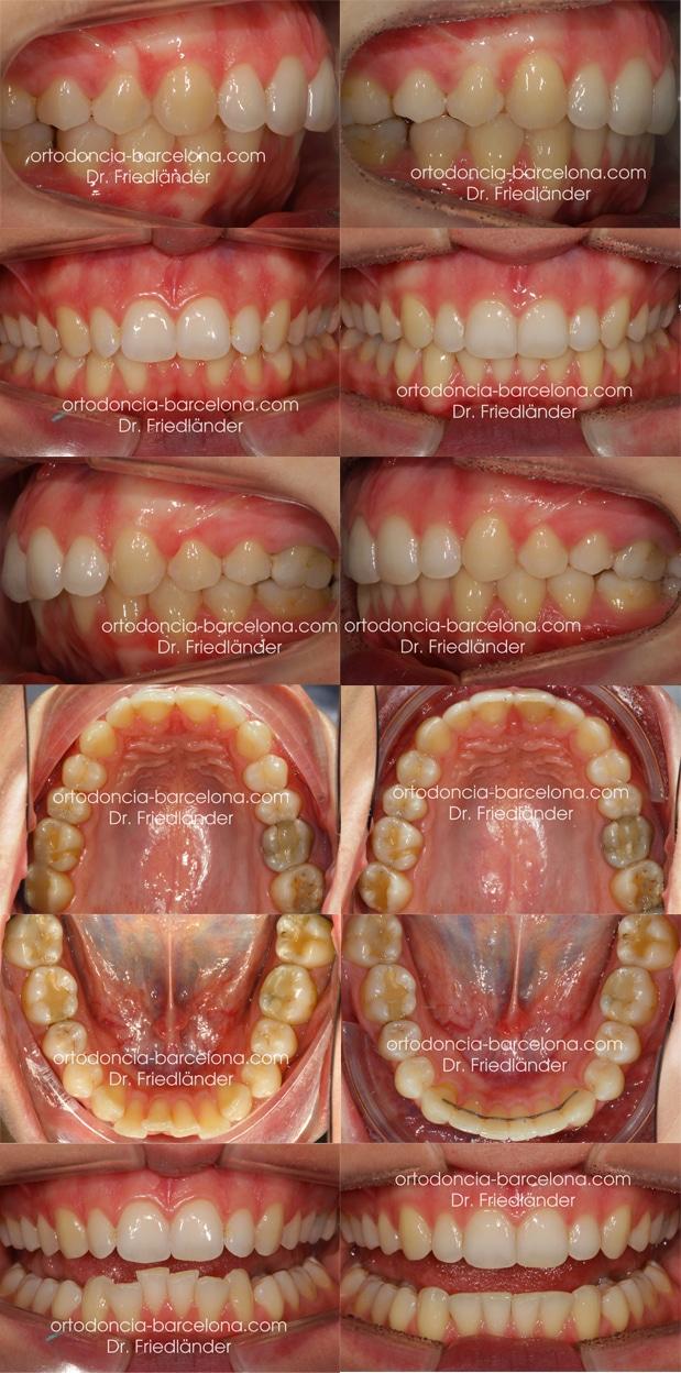 ortodoncia friedländer Barcelona Invisalign incognito lingual invisible estetica transparente (5)