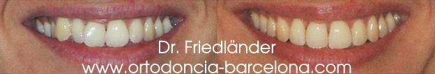 invisalign ortodoncia friedlander barcelona invisible transparente lingual estetica (2)