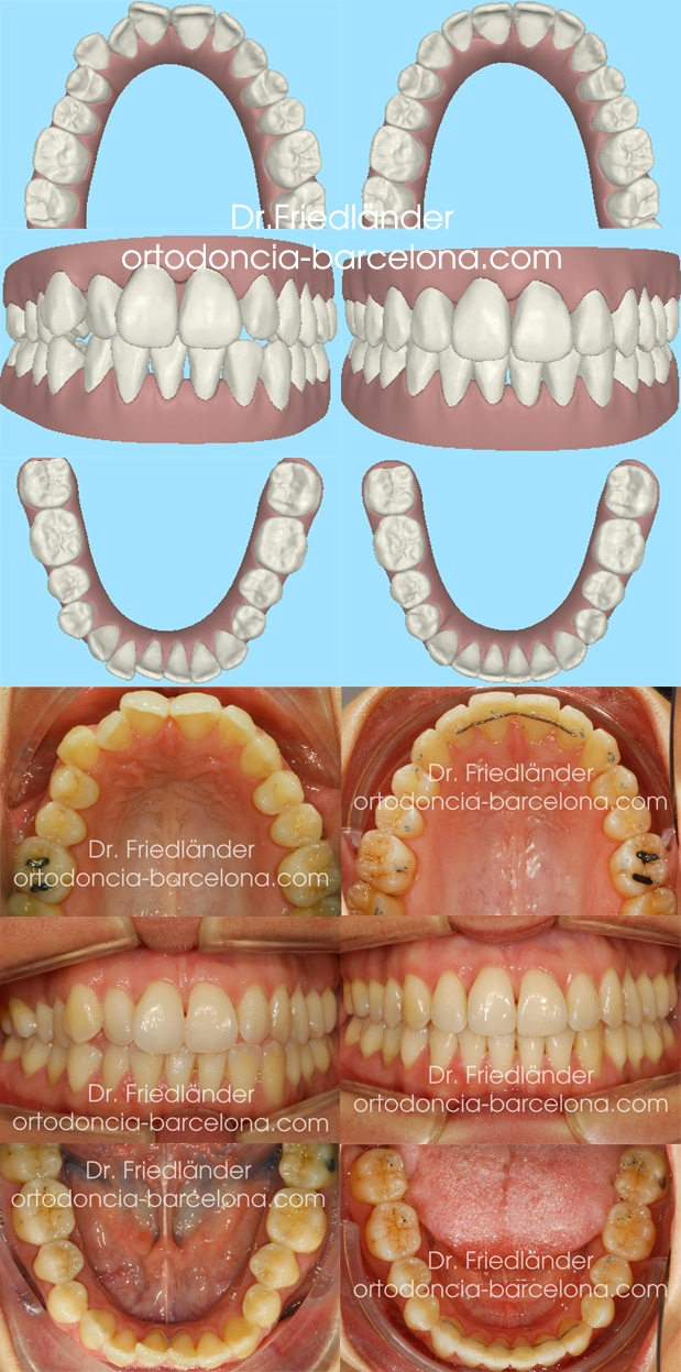 invisalign ortodoncia friedlander barcelona invisible transparente lingual estetica (3)