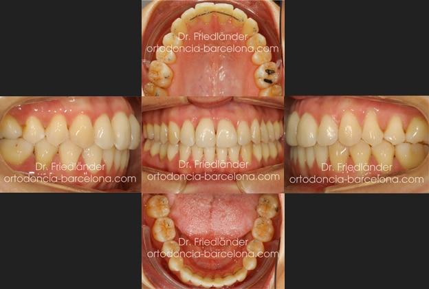 invisalign ortodoncia friedlander barcelona invisible transparente lingual estetica (4)