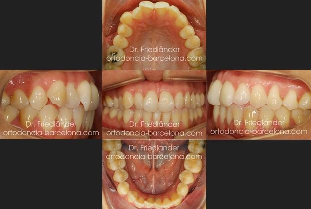 invisalign ortodoncia friedlander barcelona invisible transparente lingual estetica