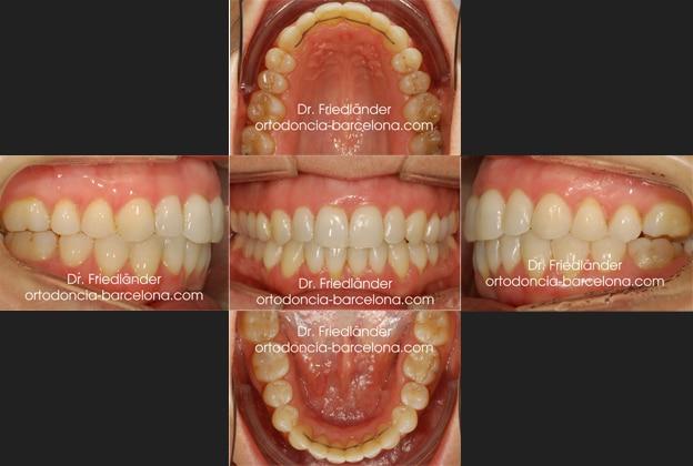 Ortodoncia Friedländer Barcelona invisalign invisible lingual transparente estetica