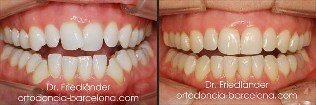 Ortodoncia Friedländer Barcelona invisalign invisible lingual transparente estetica (3)