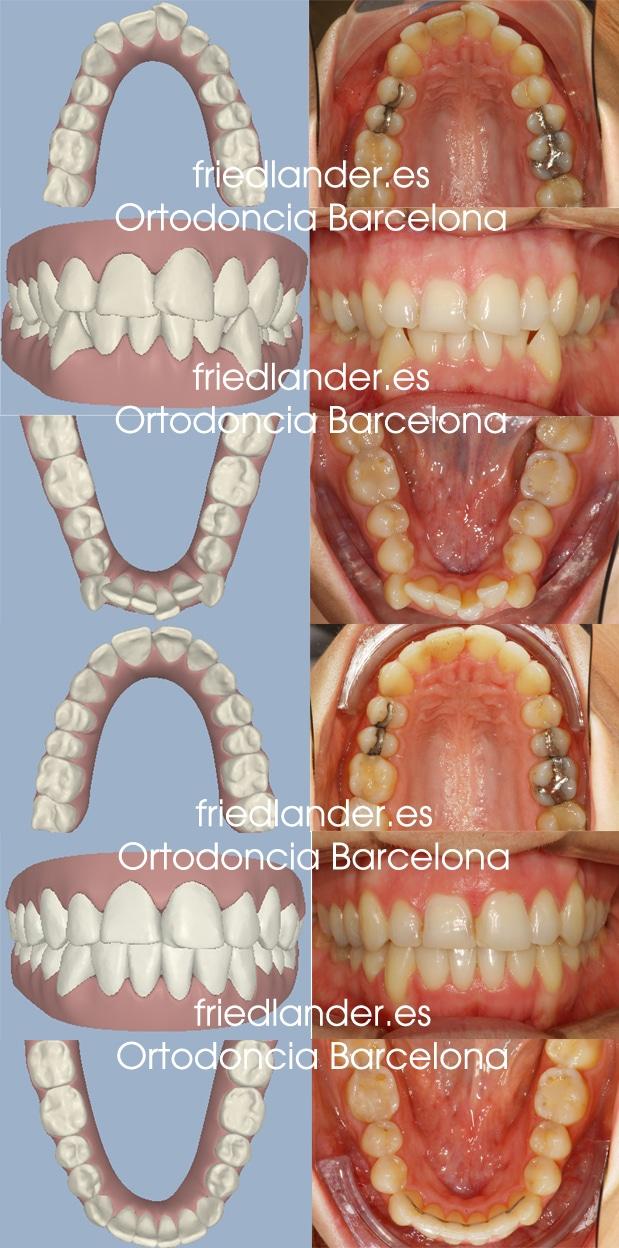 Ortodoncia Friedländer Barcelona Invisalign incognito lingual invisible estetica autoligado transparente