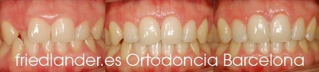 Friedländer Ortodoncia Barcelona Invisalign Invisible lingual incognito estetica autoligado (1)