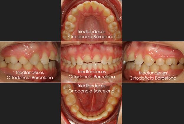 Ortodoncia Friedlander Barcelona invisalign transparente lingual invisible autoligado estetica (2)