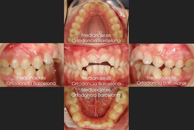 Ortodoncia Friedlander Barcelona invisalign transparente lingual invisible autoligado estetica (4)