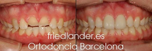 Ortodoncia Friedlander Barcelona invisalign transparente lingual invisible autoligado estetica (6)