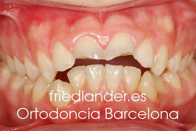 Ortodoncia Friedlander Barcelona invisalign transparente lingual invisible autoligado estetica (f)