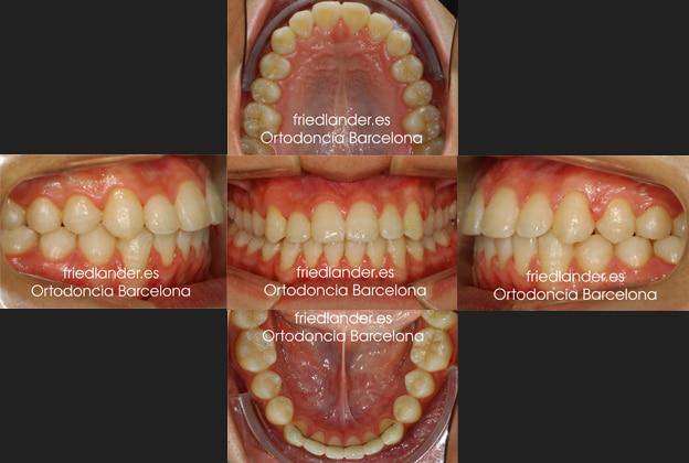 Ortodoncia Friedlander Barcelona lingual invisible Invisalign transparente incognito win estetica autoligado (3)