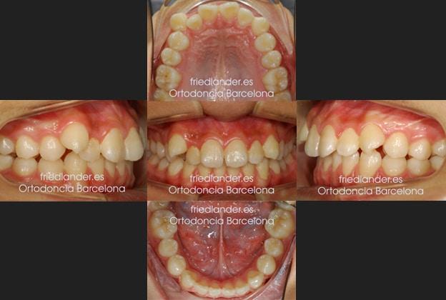 Ortodoncia Friedlander Barcelona lingual invisible Invisalign transparente incognito win estetica autoligado