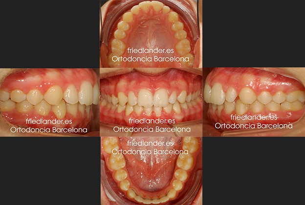 Ortodoncia Friedlander Barcelona Lingual Invisible Invisalign Transparente Estetica autoligado