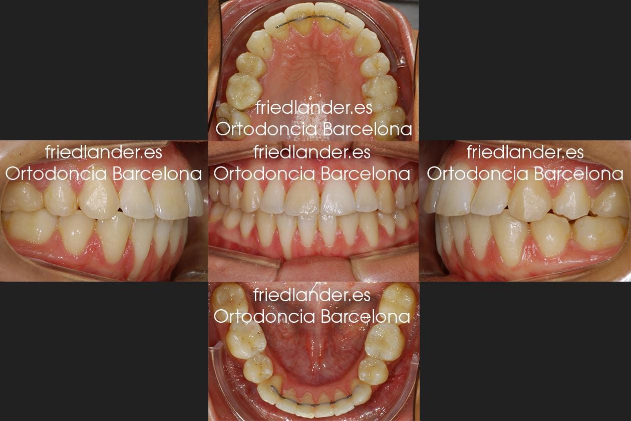 Ortodoncia Friedlander Barcelona Lingual invisible win incognito Invisalign transparente brackets despues