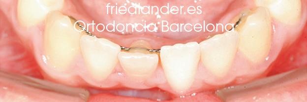Ortodoncia Friedlander Barcelona Lingual invisible win incognito Invisalign transparente