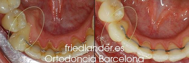 Ortodoncia Friedlander Barcelona Lingual invisible win incognito Invisalign transparente brackets estetica