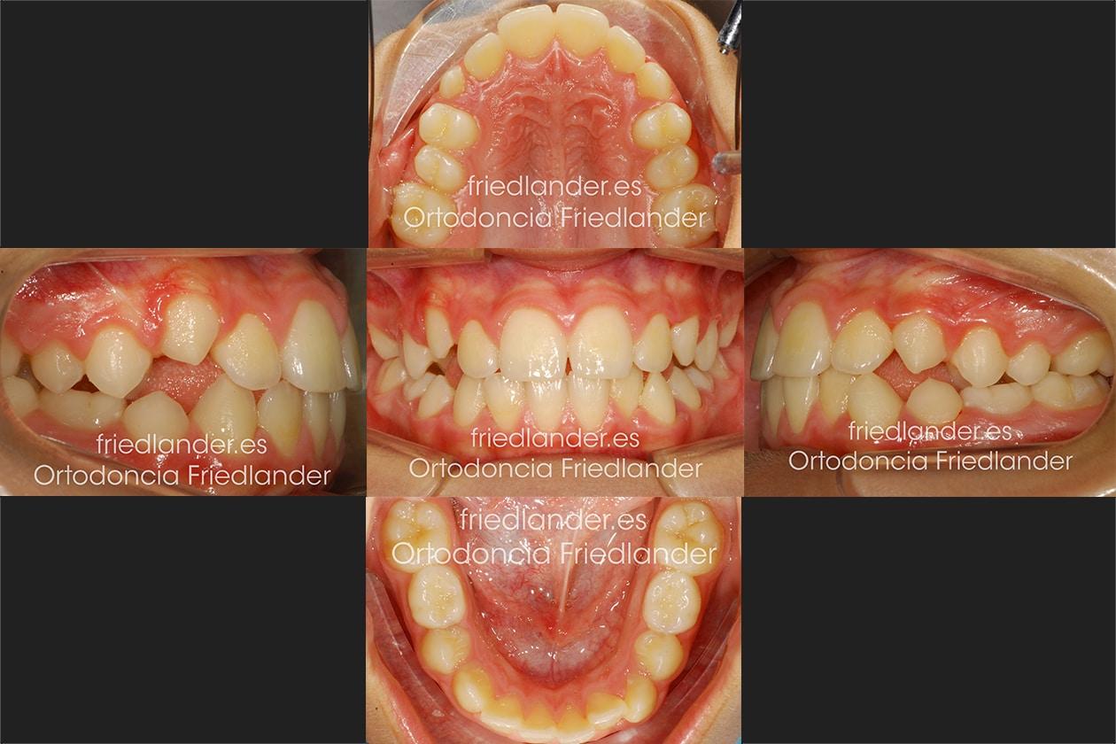 Ortodoncia Friedlander Barcelona Invisalign transparente lingual invisible fin