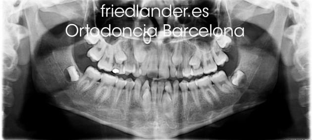 Ortodoncia Friedlander Barcelona Invisalign invisible lingual caninos incluidos 2