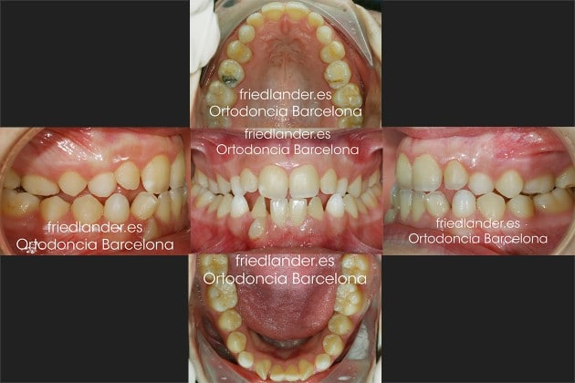 Ortodoncia Friedlander Barcelona Invisalign invisible lingual caninos incluidos estetica
