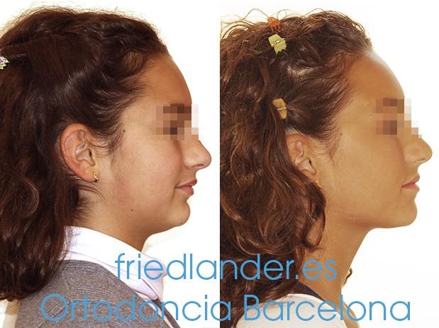Ortodoncia Friedlander Barcelona Invisalign lingual invisible autoligado