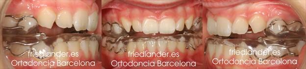 tratameinto de Ortodoncia Friedlander Barcelona Invisalign lingual invisible autoligado clase II
