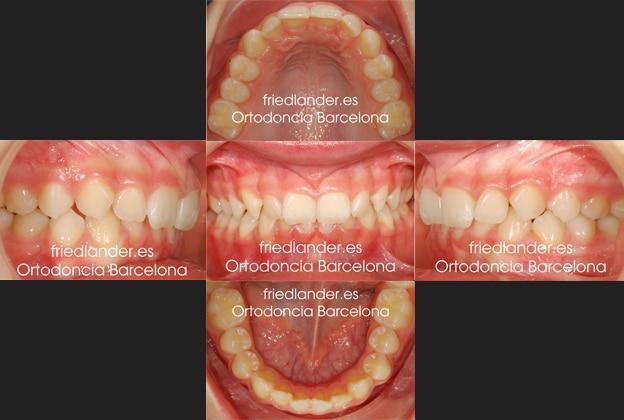 Ortodoncia Friedlander Barcelona Invisalign lingual invisible autoligado clase II