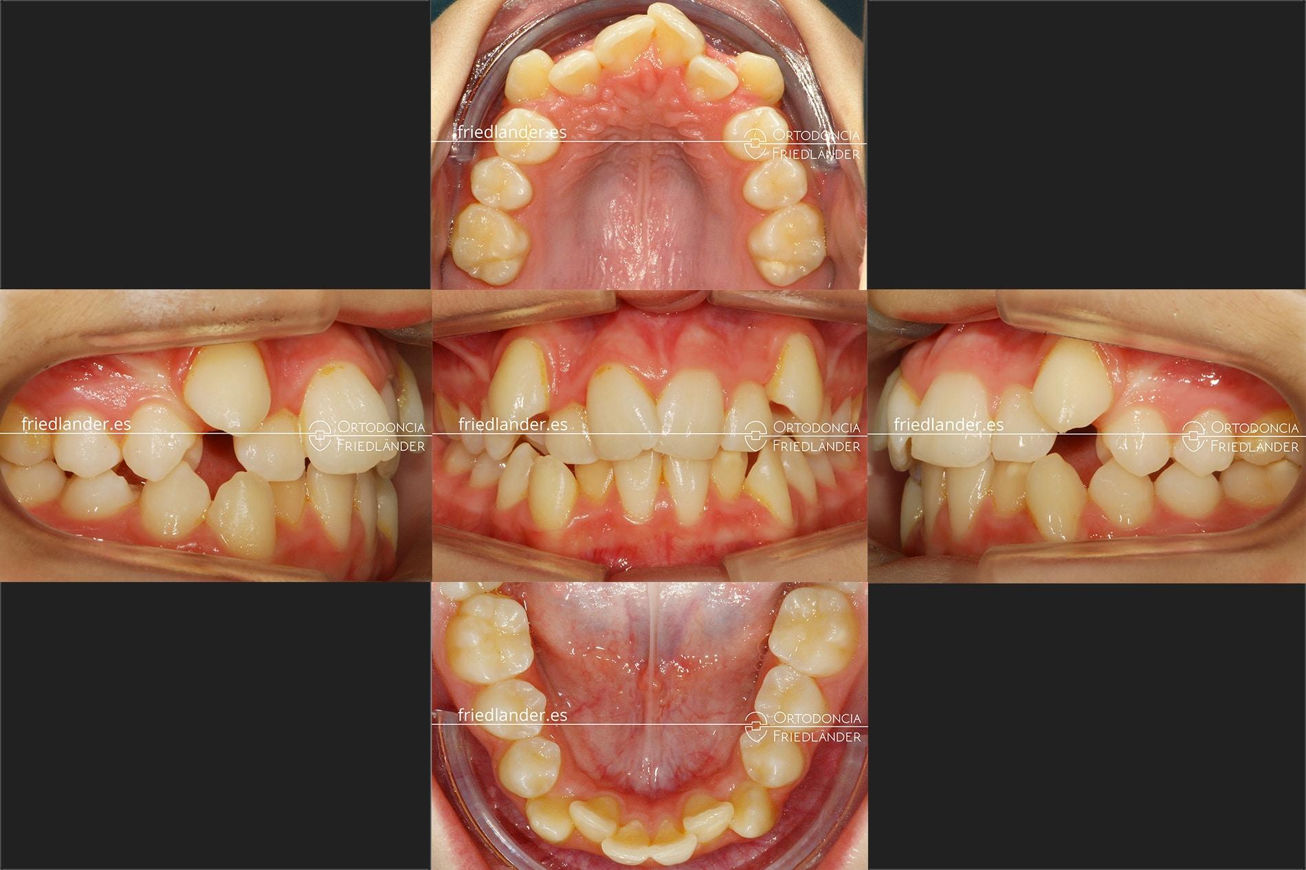 tratamiento Ortodoncia Friedlander Barcelona disyuntor expnasión brackets invisible