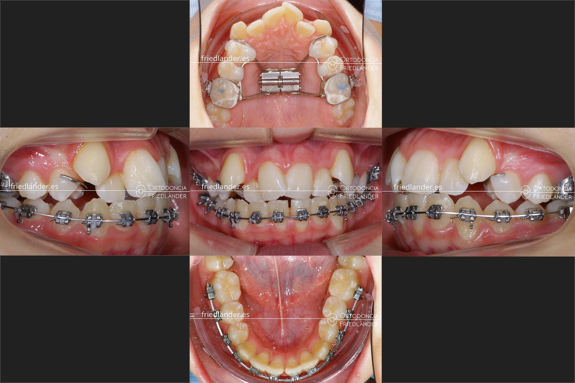 tratamiento con disyuntor ortodoncia Friedlander Barcelona expnasión brackets invisible