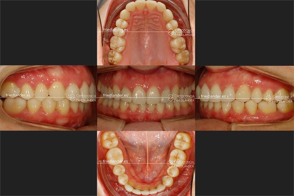 ortodoncia friedlander barcelona brackets esteticos canino inferior lingual
