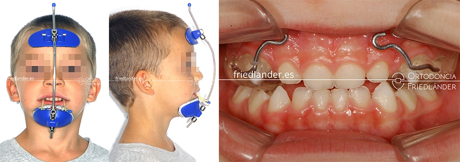Ortodoncia Friedlander Barcelona clase III disyuntor mascara facial