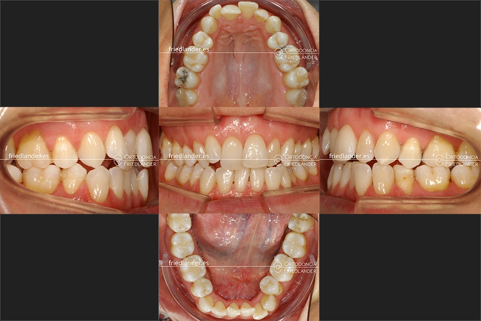 Ortodoncia Friedlander Barcelona invisalign transparente invisible antes tratamiento
