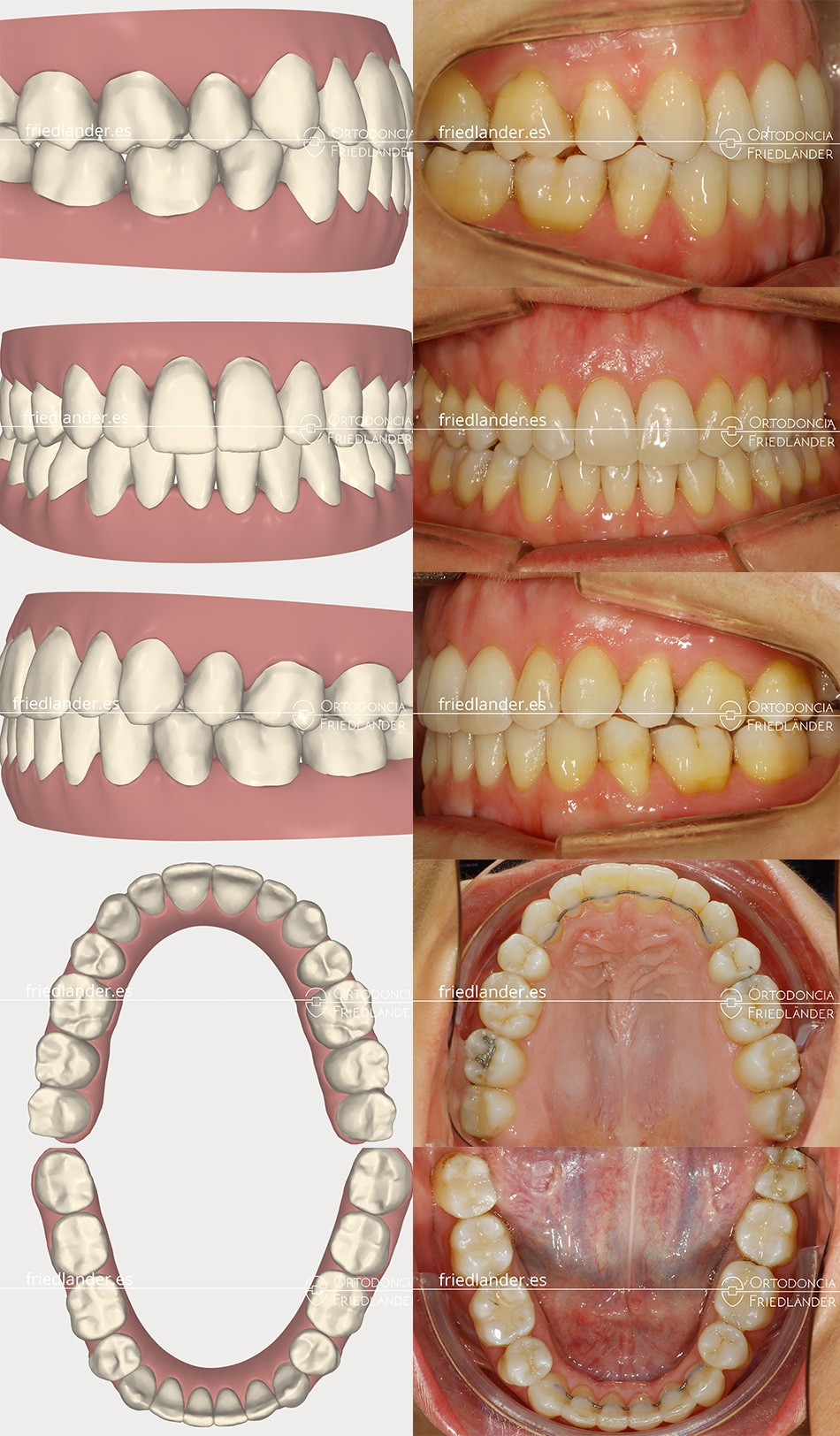 Ortodoncia Friedlander Barcelona invisalign transparente invisible clincheck