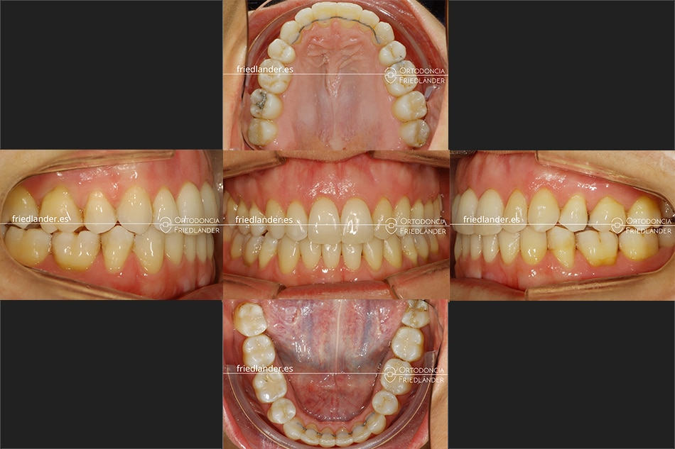 Ortodoncia Friedlander Barcelona invisalign transparente invisible despues tratamiento