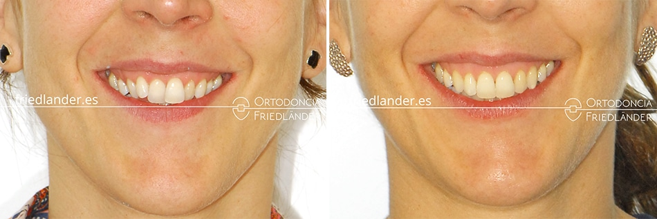 Ortodoncia Friedlander Barcelona invisalign transparente invisible sonrisa