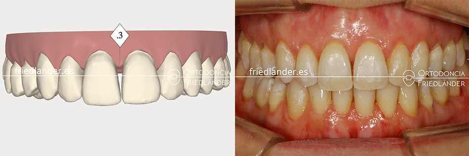 Ortodoncia Friedlander Barcelona invisalign transparente invisible stripping CC