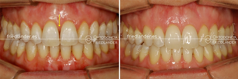 Ortodoncia Friedlander Barcelona invisalign transparente invisible stripping