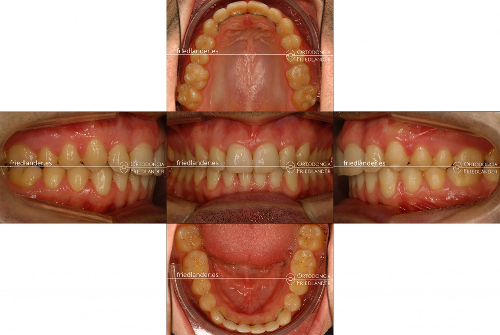 Ortodoncia Friedlander Barcelona tratamiento microtornillos clase II