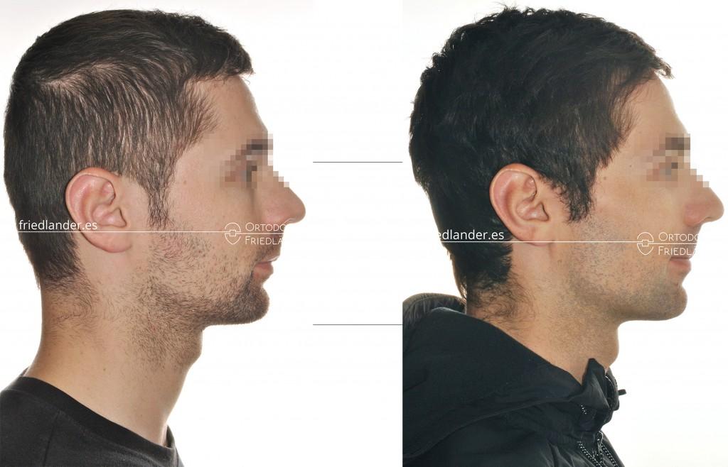 Ortodoncia Friedlander Barcelona tratamiento microtornillos estetica colocación distal perfil extraoral