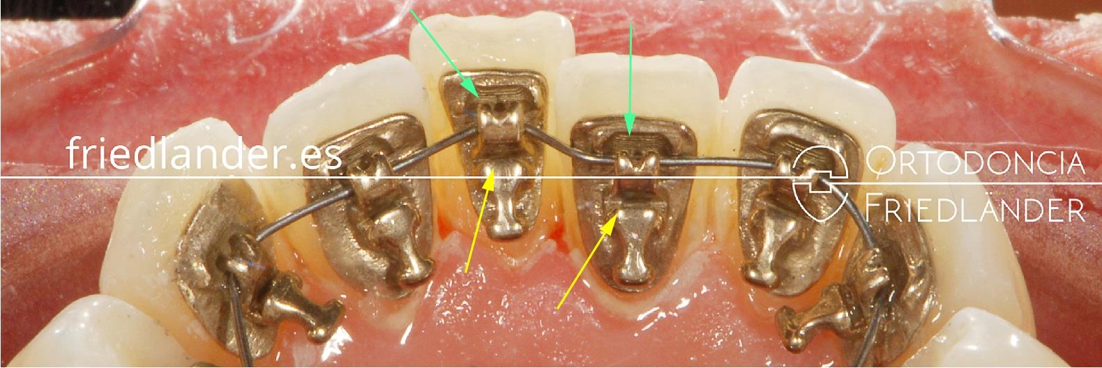 Ortodonia Friedlander Barcelona ortodoncia lingual invisible alineacion autoligado incognito