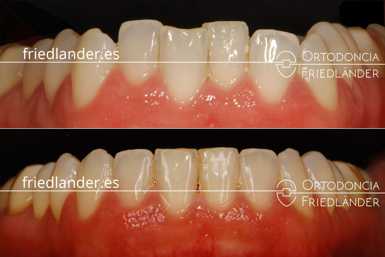 Ortodonia Friedlander Barcelona ortodoncia lingual invisible alineacion
