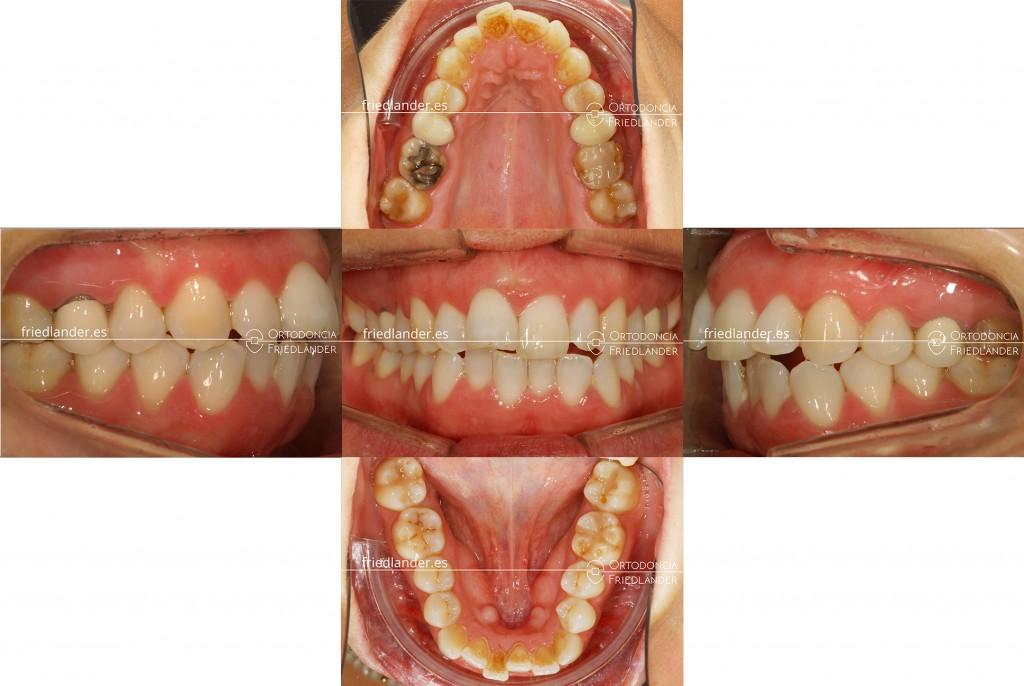 Ortodonia Friedlander Barcelona ortodoncia lingual invisible microtornillos