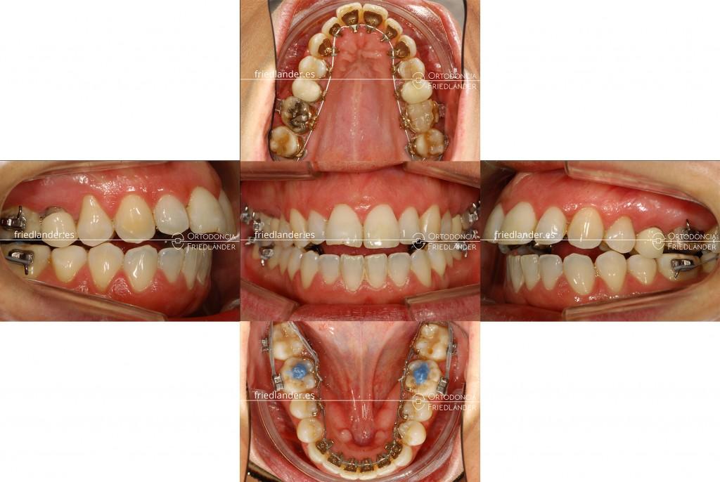 Ortodonia Friedlander Barcelona ortodoncia lingual invisible mordida abierta