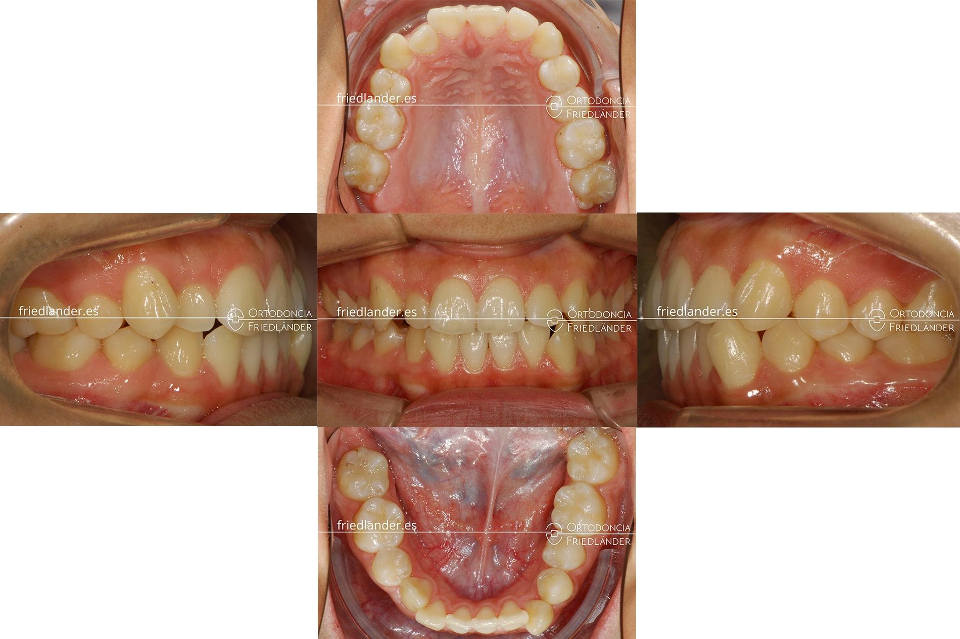 tratamiento de ortodoncia ortodoncia barcelona