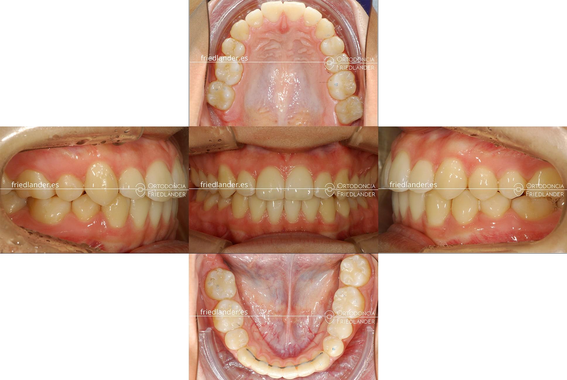 ortodoncia barcelona stripping